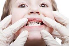 Kids teeth decay#OremDentist
