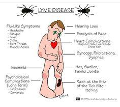 Lime disease