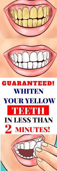 GUARANTEED! WHITEN YOUR YELLOW TEETH IN LESS THAN 2 MINUTES! - Magical Useful Tips