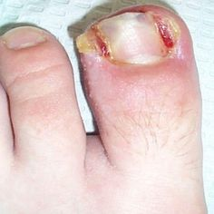10 Home Remedies For Nail Infection