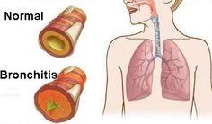 Let's live healthy: Bronchitis