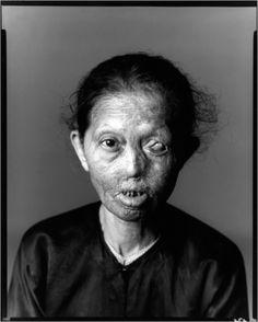 Richard Avedon     Napalm Victim #1, Saigon     1971