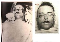 Dillinger's corpse