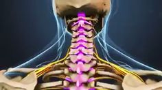 , Cervical Spinal Stenosis Over time, degenerative changes in the spine can cause the spinal canal to narrow. Having a congenitally narrow spinal canal . Chiropractic Therapy, Doctor Of Chiropractic, Chiropractic Wellness, Spinal Cord Anatomy, Axillary Nerve, Cervical Spinal Stenosis, Nerve Anatomy, Spinal Canal, Medical Quotes