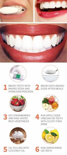 The best teeth whitening kits natural ways to whiten teeth, how to make teeth white naturally from y Quick Teeth Whitening, Natural Teeth Whitening, Teeth Whiting At Home, Make Teeth Whiter, Receding Gums, Hydrogen Peroxide, Healthy Teeth, White Teeth, Oral Hygiene