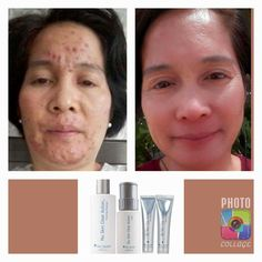Do you want a renovated and beautiful skin? Just send me a message. Subject: Nuskin order, with advantage Price. Beauty Care, Beauty Skin, Health And Beauty, Beauty Hacks, Teeth Care, Skin Care, Natural Teething Remedies, Natural Teeth Whitening, Best Skincare Products