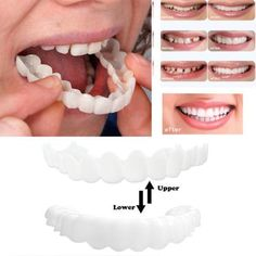 Instant Snap on Perfect Smile Get a perfect smile with Instant Snap on Perfect Smile Veneers! Want to smile confidently again? Get the smile you want without spending thousands at the dentist office. Theveneer is molded to cover missing, crooked, chipped or stained teeth. They are designed to look natural and feel co Veneers Teeth, Dental Veneers, Perfect Smile Teeth, Snap On Smile, Smile Dental, Dental Care, Emergency Dentist, Stained Teeth, Cosmetic Dentistry