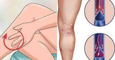 Remedios caseros para tratar problemas de inflamación en las venas, también conocido como flebitis, ayudando a calmar el dolor y evitar posibles consecuencias