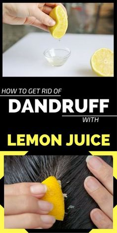 Dandruff appears most of the time because of fungi that is often found on the scalp. If sebum secretion increases, these fungi multiply much faster and produce substances that irritate the scalp. This irritation leads to dandruff appearance and itch. The appearance of dandruff can also be influenced by genetic predisposition, hormonal changes, excessive combing, ...