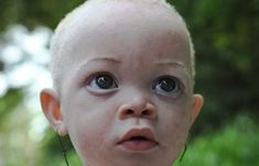 The African country Tanzania has the largest population of albinos and the discrimination and violence is high. Many of the albinos are abducted and butchered for parts used in ceremonies. Repost to raise awareness.