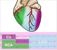 12 Lead EKG recognition. Circumflex (Cx) - I, aVL - Reads lateral MI's Right Coronary Artery (RCA) - II, III, aVF - Reads inferior, post Left Vent MI's. Left Anterior Descending (LAD) - V1-V6 - Reads anterior and septal MI's.
