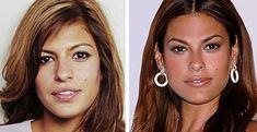 Eva Mendes Eva Mendes, Nose Plastic Surgery, Celebrity Plastic Surgery, Nose Surgery, Botox Before And After, Celebrities Before And After, Botox Lips, Rhinoplasty Surgery, Cosmetic Procedures