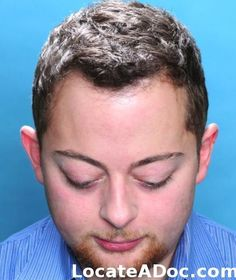 Hair Transplant (Restoration) Pictures, Before & After gallery pictures, photos for Hair Transplant (Restoration) performed by Allan Parungao, MD, Chicago, IL 888-656-4247 https://www.locateadoc.com/bosley-medical-doctors/contact