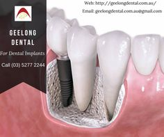 Dental Implant is an artificial root tooth replacement. Axiss Dental is one of the Best Dental Implants Clinics in Delhi,Noida & Bangalore. Dental Implants surgery is performed under the professional dentist. Teeth Implants, Dental Implants, Dental Hygienist, Implant Dentistry, Dental Bridge Cost, Bone Grafting, Affordable Dental, Emergency Dentist, Dental Crowns