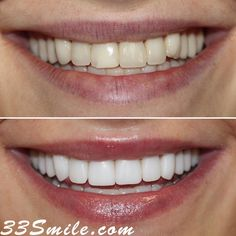 Happy Monday! This patient came to us to restore some older veneers she got at another office. We did a total of 10 veneers for this case and love how it turned out! #drjamsmiles #33Smile . . All photos and video of patients are of our actual patients. All media is the of Cosmetic Dental Associates. Any use of media contained herein is prohibited without written consent. . . #satx #satxdentist #dentistry #goals #smile #teeth #instagoals #transformationtuesday #beforeandafter #whiteteeth #perf Insta Goals, Dental Cosmetics, Smile Teeth, Dental Procedures, Cosmetic Dentistry, Transformation Tuesday, Beautiful Smile, Happy Monday, Restore