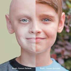 Striking Before-And-After Photo Illustrates Childhood Cancer Survivor's Inspiring Recovery