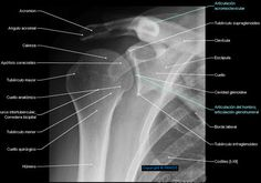 Cintura escapular - Cintura escapular - Radiography - Anatomía Humana : Articulación del hombro; articulación glenohumeral, Acromion, Clavícula, Escápula, Cavidad glenoidea, Tubérculo menor, Apófisis coracoides
