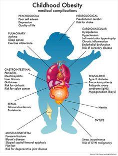Obesity in Children Childhood