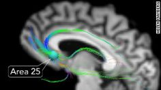 """Deep Brain Stimulation of Area 25 fights depression. """"As a benchmark, the doctors asked Guyton to rate her feelings of dread on a scale of 1 to 10.  """"Eight,"""" she reported.  Two minutes later, with contact No. 1 on, Guyton said, """"Three.""""  But doctors would get an ever better result with contact No. 2.  Shortly after the second contact was turned on, Guyton quietly announced, """"I almost smiled."""" Then she chuckled.Æ"""