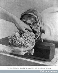 Method of removing the brain after it is severed from the body.