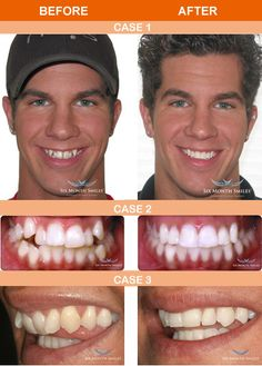 181 Best orthodontists--Brace Yourself! images in 2017