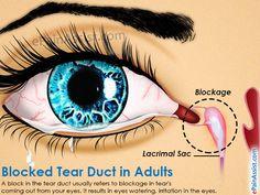 Blocked Tear Duct in Adults Eye Infection Symptoms, Eye Infections, Eye Pain, Eyes Watering, Tears In Eyes, Watery Eyes, Natural Healing, Home Remedies