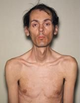 August 22, 2013: Curschmann-Batten-Steinert syndrome is a chronic, slowly progressing, highly variable, inherited multisystemic disease. It is characterized by wasting of the muscles (muscular dystrophy), cataracts, heart conduction defects, endocrine changes, and myotonia. Two types of myotonic dystrophy exist. Both forms of the disease display an autosomal dominant pattern of inheritance.