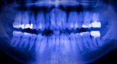 El análisis de 30 cuerpos encontrados en Pompeya bajo una gruesa capa de cenizas volcánicas, generada por la explosión del Vesubio en el año 79 d.C., reveló que los ciudadanos de la antigua Roma poseían una dentadura perfecta.Los restos fueron estudiados mediante el uso de scanners de última generación. A pesar de que es sabido que los romanos no usaban cepillos de dientes ni enjuague bucal, en las imágenes se observa con claridad la absoluta salud dental de los sujetos.