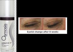 Get an Eye Lift without the knife. Examiner shares how Catalyst AC-11 is the perfect solution for droopy eyelids.