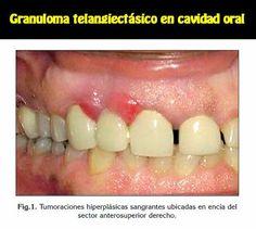 Granuloma telangiectásico en cavidad oral. Reporte de un caso clínico   OVI Dental