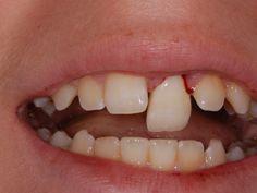 discover oral health ideas on pinterest oral health dental