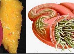 Çaba harcamadan Vücudundaki Yağ ve Parazit Depolarını Boşaltın