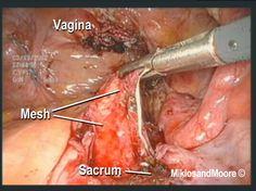 Vaginal Distress Part 2