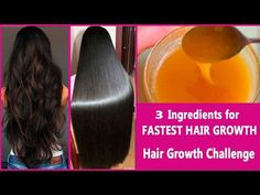 FASTEST HAIR GROWTH TREATMENT at HOME |Grow hair faster and thicker Naturally – Hair Care Tips