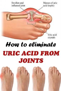 How To Remove Uric Acid Crystallization From Your Body To Prevent Gout And Arthritis