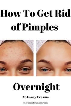Remove Pimples Overnight, How To Get Rid Of Pimples, Pimple Marks, Acne Marks, What Causes Pimples, Painful Pimple, Back Pimples, American Skin, Face Care Routine