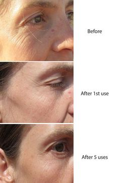 How to get rid of wrinkles in 30 minutes!