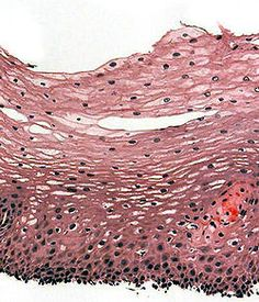 stratified squamous epithelium: consists of squamous (flattened) epithelial cells arranged in layers upon a basal membrane; ex: skin; simple epithelium would only be one cell thick