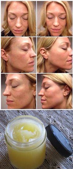 My friend showed me this trick and I can't believe how well it worked! It's like a facelift in a jar