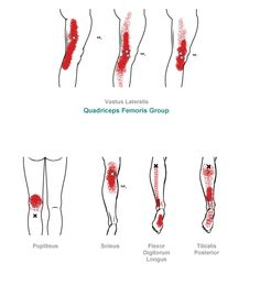 Lower Leg - Myofascial Pain Syndrome (muscle pain) trigger point referral pain pattern for the knee & lower leg Psoas Release, Trigger Point Therapy, Sports Massage, Qi Gong, Massage Techniques, Trigger Points, Muscle Pain, Physical Therapy, Physical Pain