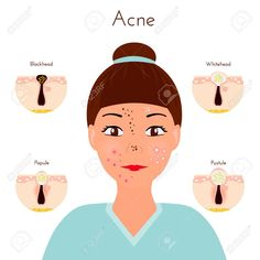 Skin problems Girl closse up face with different types of acne. Homemade Acne Treatment, Facial Treatment, Foot Detox Soak, Different Types Of Acne, How To Apply Blusher, Skin Growths, Face Mapping, Acne And Pimples, Bright Skin
