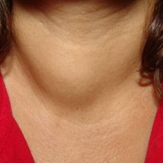 Natural Cure For Thyroid Nodules - eat more broccoli, brussel sprouts, turnips, soy mustard greens and beans