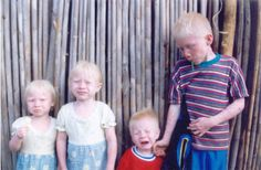 The Kuna Native Americans from Panama and Columbia have the highest rate of albinism of any community in the world. Roughly 1 in approximately 130 births is an albino child. Albinos are treasured in this society often being referred to as the 'moon children.'