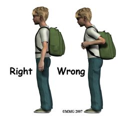 Backpacks can cause poor posture and back pain. Here is how to prevent back pain injury from backpacks. Chiropractic Quotes, Family Chiropractic, Posture Correction Exercises, Alexander Technique, Postural, Pediatric Physical Therapy, Psoas Muscle, Injury Prevention, Kids Backpacks