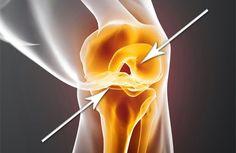 Una de las lesiones más comunes en todo el mundo es el desgaste del cartílago, por lo general muy doloroso.El cartílago es una estructura muy flexible, que apoya algunas estructuras de ingravidez como el oído, la nariz y las articulaciones. Pero hay zonas que son muy sensibles con respecto a lesiones como articulaciones de la ...