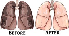 Είναι κανόνας πως για να αποβάλει ο οργανισμός τη νικοτίνη απαιτούνται 48-72 ώρες. Αυτή είναι μία άσχημη είδηση για όλους όσους προσπαθούν να κόψουν το κάπνισμα. Ευτυχώς, σε κάθε περίπτωση, έχουμε το κρεμόριο, ένα ίζημα που δημιουργείται κατά τη διάρκεια της παρασκευής του κρασιού. Το κρεμόριο αποβάλλει εντελώς τη νικοτίνη από τον οργανισμό σας. Επίσης, …