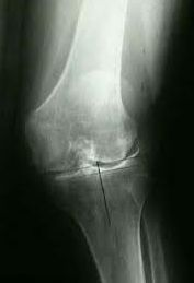Treatment for Knee Deformity and Difficulty Walking in RA