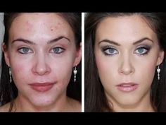 ACNE+FOUNDAION+ROUTINE+FOR+FLAWLESS+SKIN+(FULL+COVERAGE+TUTORIAL)+BLEMISHES,+ACNE,+SCARING