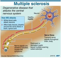 Infographic: Great image of how MS attacks the central nervous system