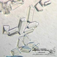 Medical Laboratory Scientist, Body Fluid, Atlas, Study, Medicine, Lab, Crystals